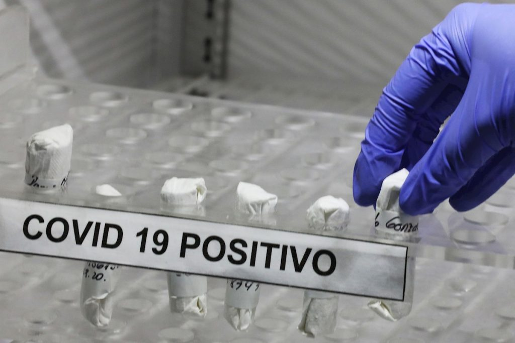 TEST PCR COVID CORONAVIRUS POSITIVO