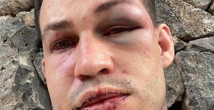 Agreden brutalmente a un joven en Costa Adeje